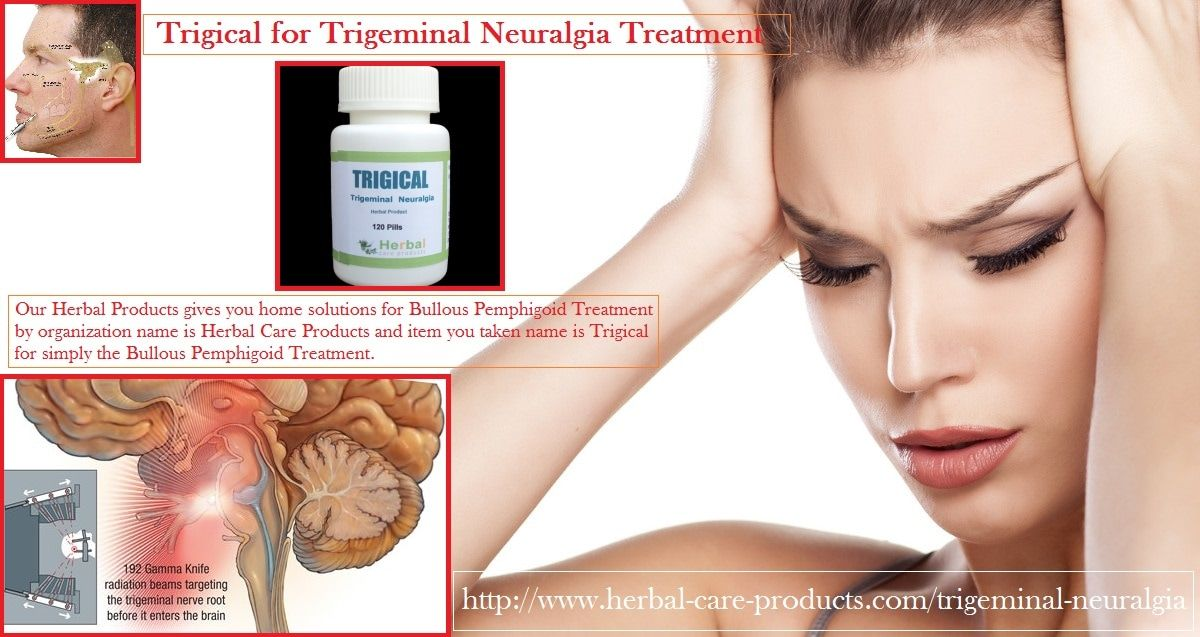 14 Natural Herbal Remedies for Trigeminal Neuralgia - Herbal Care Products