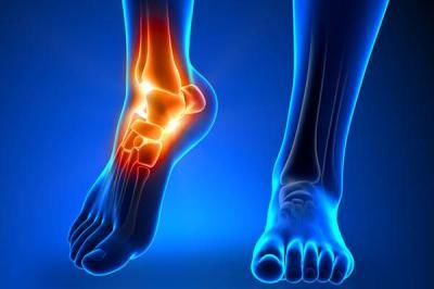 Tips For Drop Foot Treatment