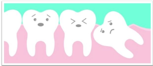What are Impacted Wisdom Teeth? Is it Possible to Prevent Impacted Wisdom Teeth?