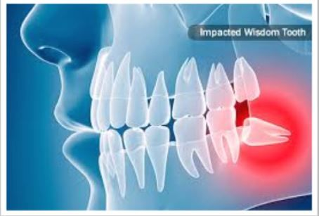 An Emergency Dentist is Readily Available for Your Solution