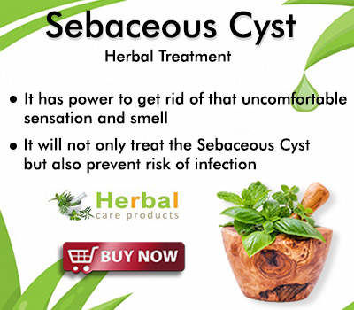 Natural Remedies for Sebaceous Cyst