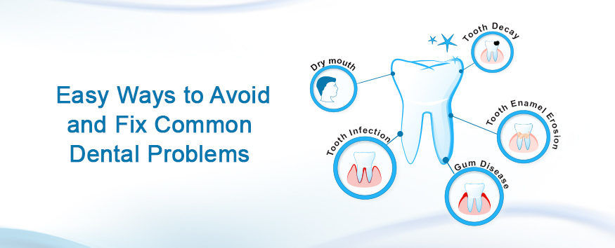 5 Easy Ways to Avoid and Fix Common Dental Problems
