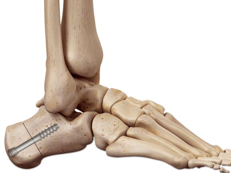¿Cuáles son los diversos tipos de tornillos de huesos?
