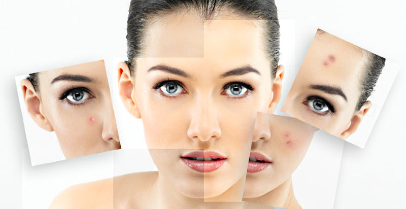 Acne Treatment in Tirupati | Laser Treatment for Acne in Tirupati