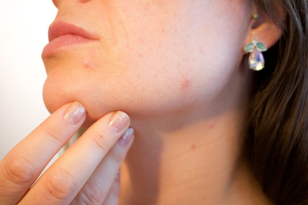 Treating Problems of Acne and Rejuvenating the Skin and The Appearance