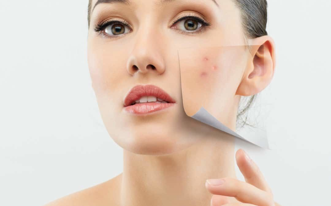Causes of Acne Scars and Know How to Get Rid of Them