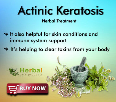 Natural Remedies for Actinic Keratosis Helps to Prevent Scaling Spots with Herbal Ingredients