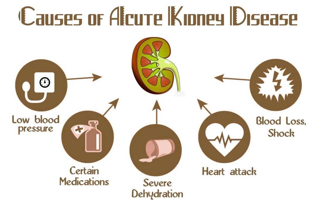 Acute Kidney disease treatment in Ayurveda