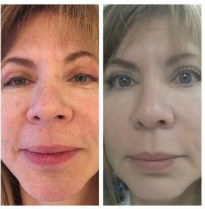 Sava Stem Cell Facelift Technique - Victor Regenerative Medicine Centers
