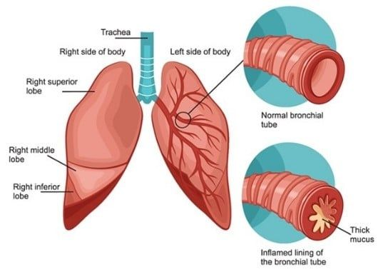 Ayurvedic Treatment for Allergic Bronchitis - Home Remedies
