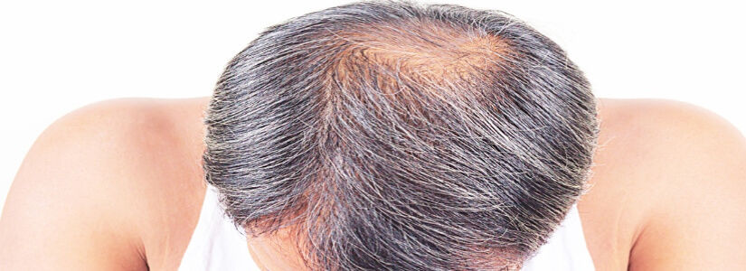 Best Treatment For Alopecia Areata in Dubai & Abu Dhabi