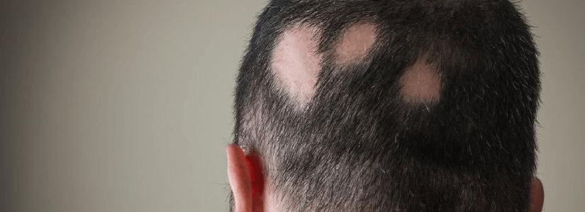 What Causes Alopecia Hair Loss? | Hair Transplant Dubai