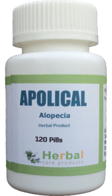 Alopecia : Symptoms, Causes and Natural Treatment - Herbal Care Products