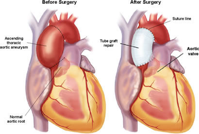 Balloon Valvuloplasty - Aortic Treatment in India - Healing Touristry
