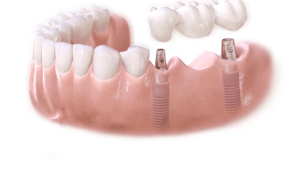Teeth Whitening Evaluates Be Familiar With Alta White Teeth Whitening