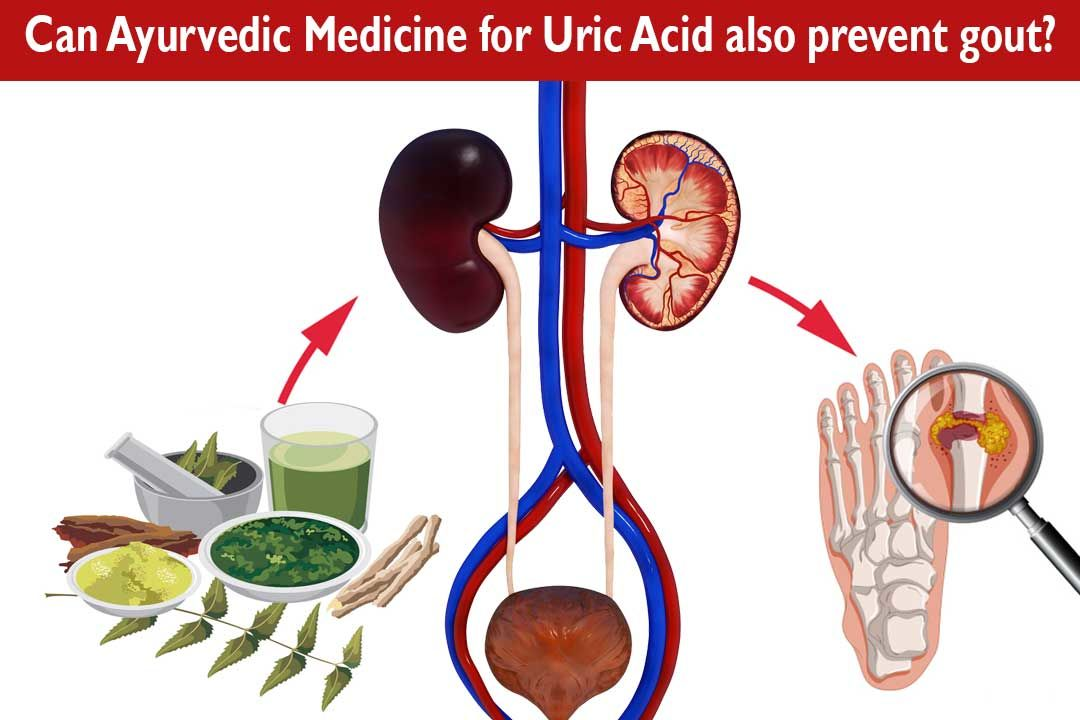 Can Ayurvedic Medicine for Uric Acid also prevent gout?