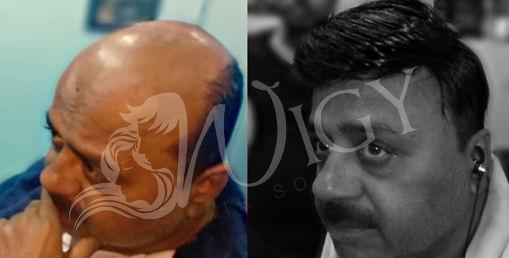 Hair Bonding Service in Delhi