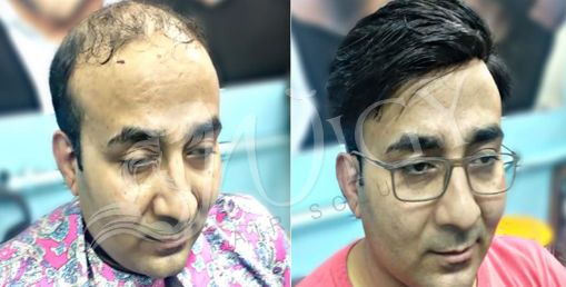 Hair Weaving Service in Delhi
