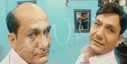 Hair Fixing Service in Delhi