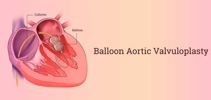 balloon aortic valvuloplasty in India