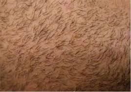 Beard Hair Transplant in Dubai, UAE | Hair Transplant Dubai