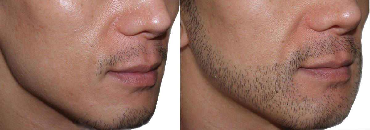 Beard Transplantation in Tirupati - Dr.Sajjas.in