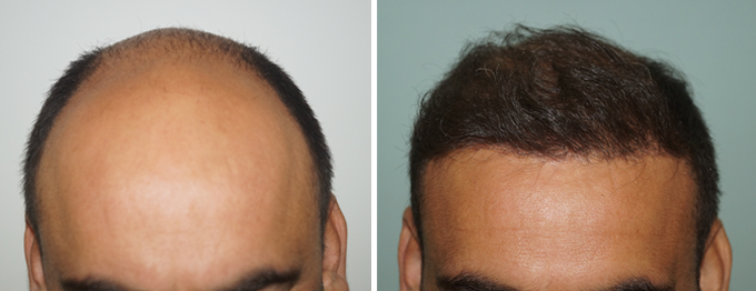 Methods of Implantation During FUE Hair Transplant