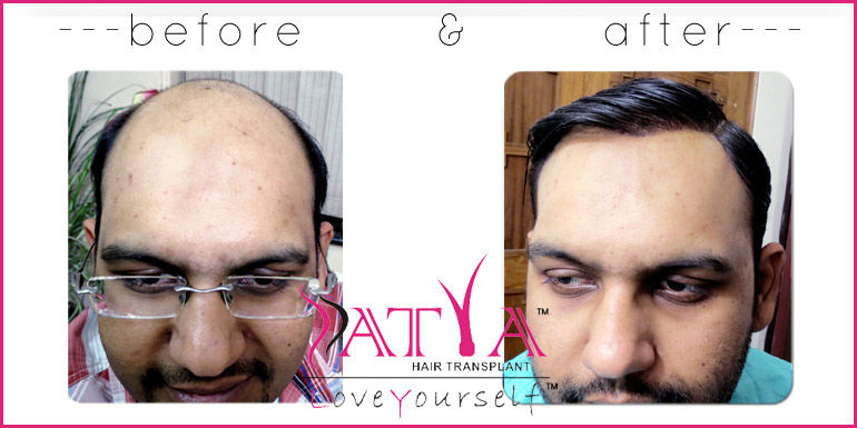 Synthetic hair transplant, Nido & Biofibre hair implant in India