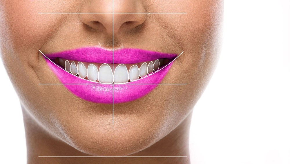 Hollywood Smile I FMS DENTAL Hospital, Hyderabad, India
