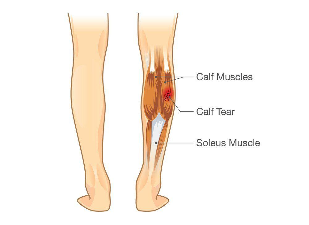 Calf Reduction Surgery Korea