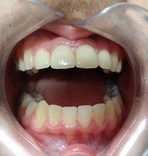 Cosmetic Dentistry In Pune | Ceramic Crowns | Book Appointment Online
