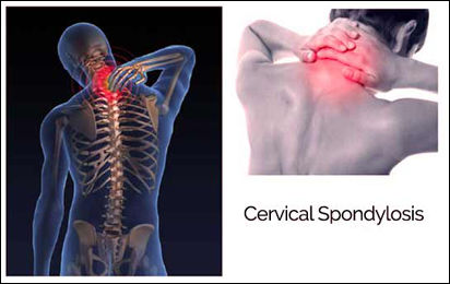 Ayurvedic Treatment for Cervical Spondylosis - Causes Signs & Remedies