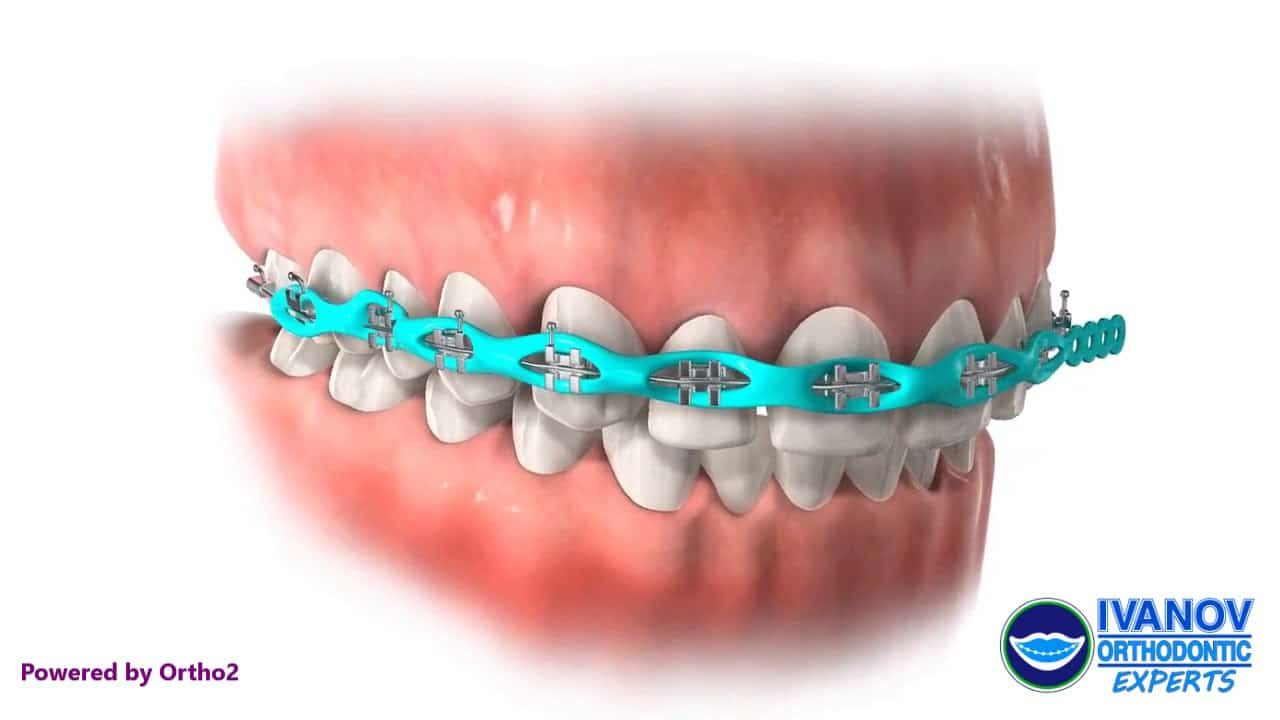 Why Metal Braces Are Still A Good Option To Go For?