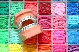 Colored braces for teeth | Cost of Colored braces - Smile Store