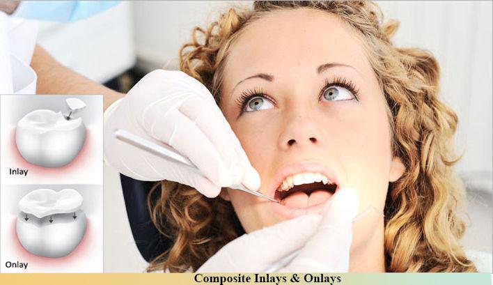 Cosmetic dentistry Auburn WA | Implant dentist near me Auburn