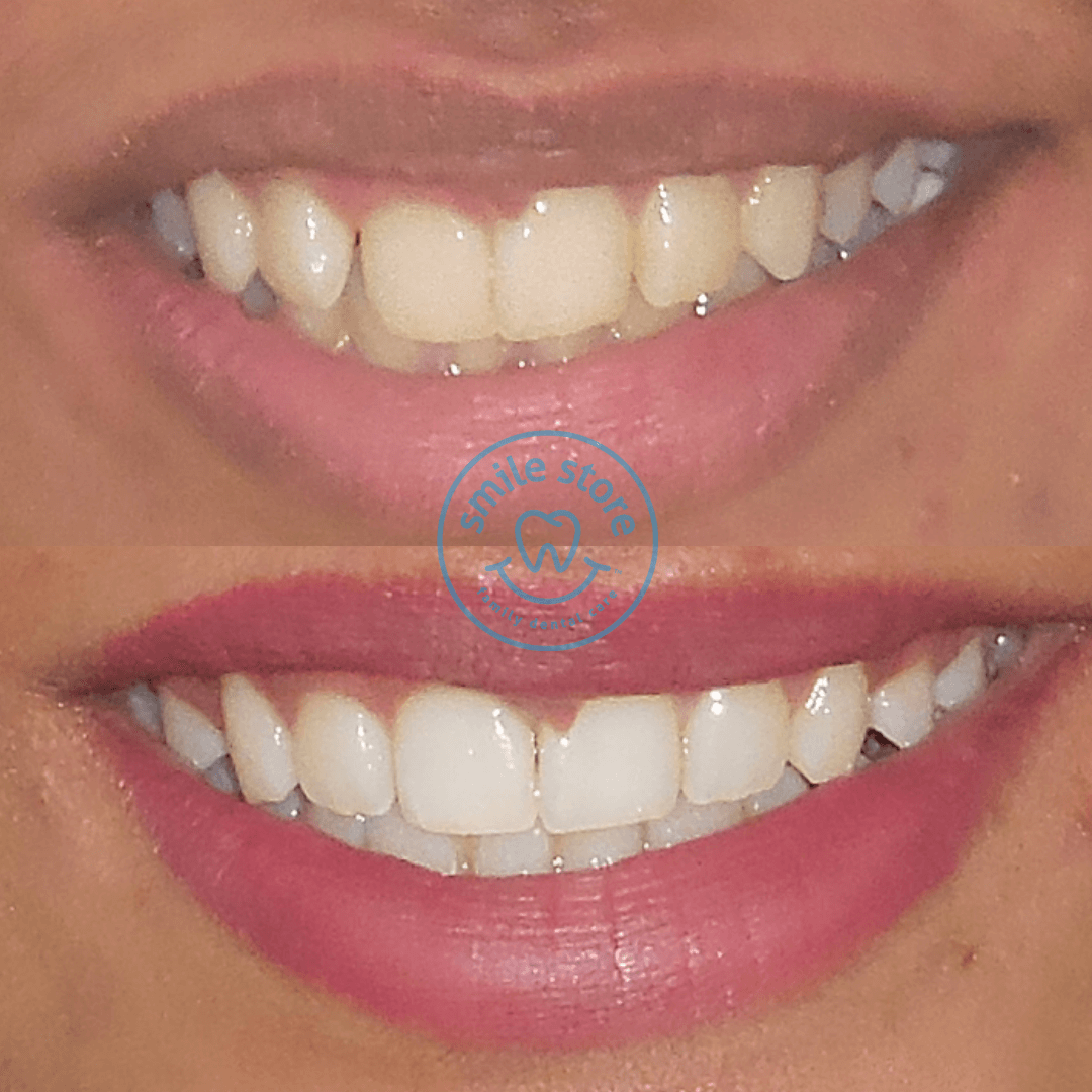 Cosmetic dentist in Mumbai - Cost of cosmetic dentistry - Smile Store