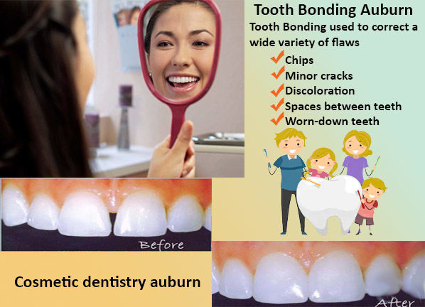 Dental Bonding | Tooth Bonding Auburn Wa | Affordable Cosmetic Dentistry Auburn