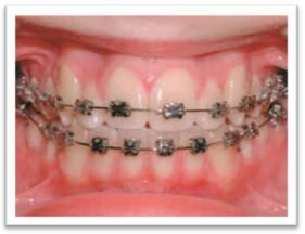 Can Orthodontics Treatment Damage The Teeth?