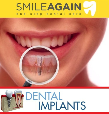 Dental Implantation: A unique way to get improved facial appearance – Smile Again