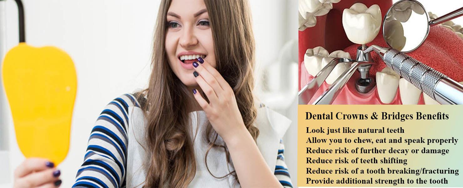 Dental Crowns & Bridges Auburn | Tooth Replacement Dentistry Auburn