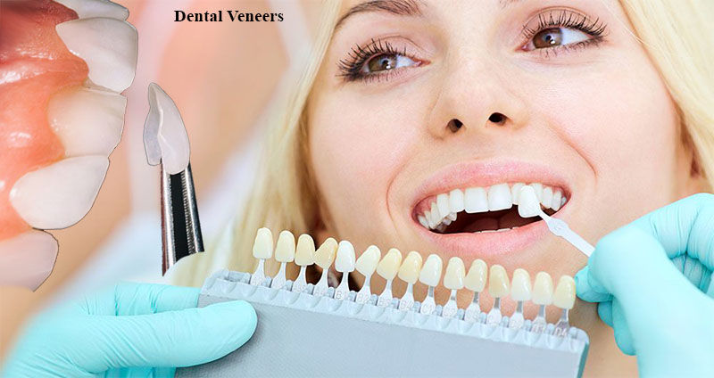 Dental Veneers | Cosmetic Dentistry Auburn | Cheap Dental Implants Auburn