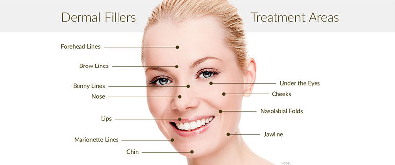 Best Dermal Fillers Treatment in Malviya Nagar, South Delhi - Dr. Hiranmayi Jha