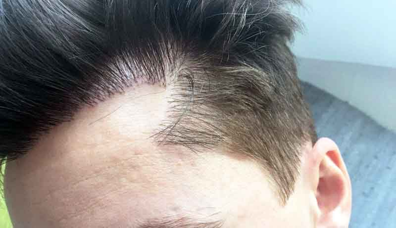Does FUE Hair transplant leave scars? - American Article