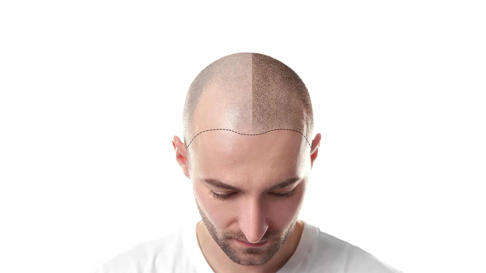 Does the Crown take longer to grow after a Hair Transplant? - American Article