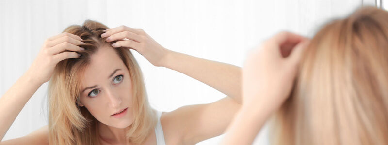 What are the early signs of alopecia? | Hair Transplant Dubai