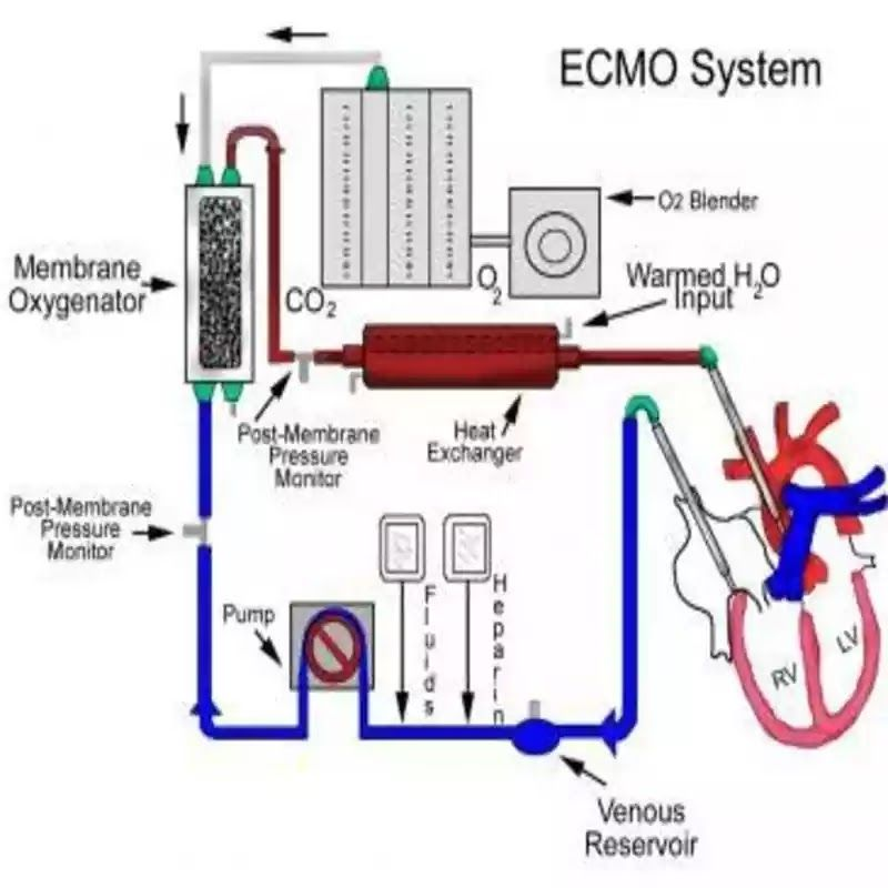 Best ECMO Support Treatment in India - Healing Touristry
