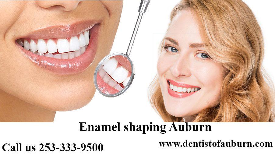 Enamel shaping Auburn | Cosmetic Dentistry auburn | Dental Implants near me