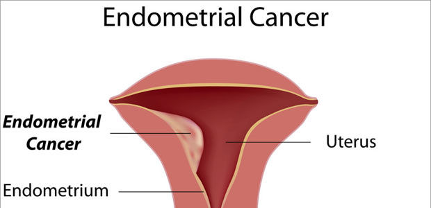 Endometrial Cancer Treatment in India - Healing Touristry
