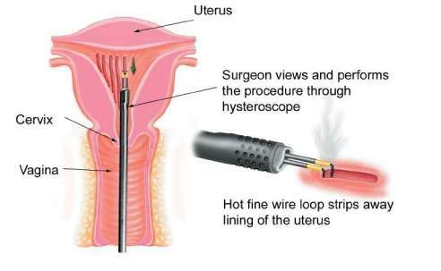 Endometrial Ablation Surgery in India - Healing Touristry