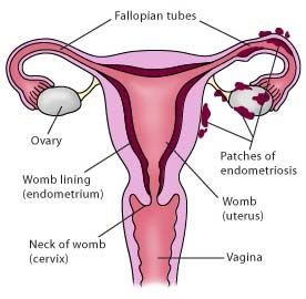 Best Endometriosis Surgery in India - Healing Touristry